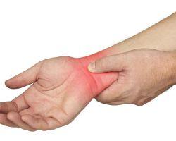 Что делать при растяжении связок руки