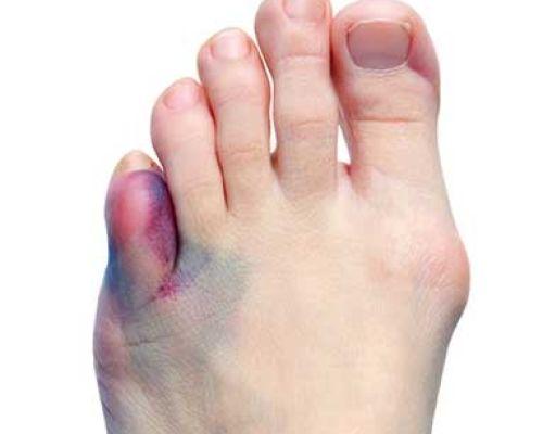 Как быстро вылечить перелом пальца на ноге?