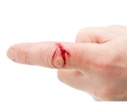 Что такое рана, ее виды и классификация