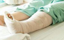 Какие препараты использовать при переломах для быстрого срастания костей?