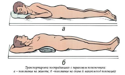 транспортировка с переломом позвоночника
