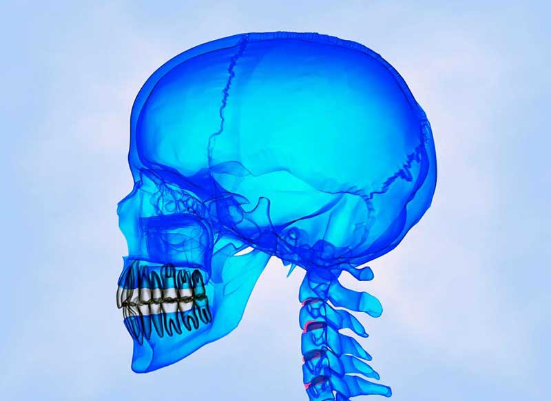Перелом черепа: симптомы, первая помощь, последствия